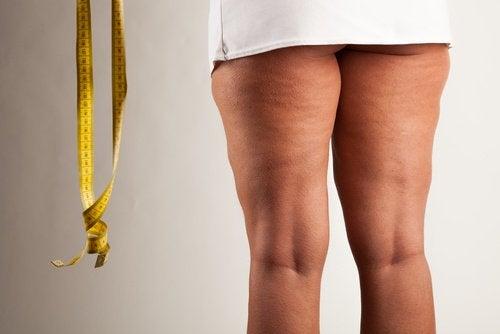 Gambe grasse