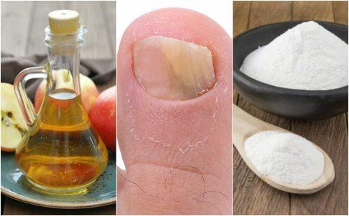 Aceto di mele e bicarbonato contro l'onicomicosi