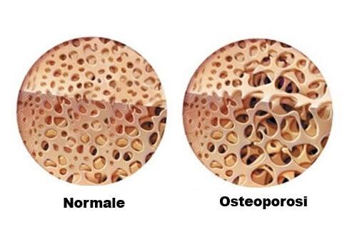 Osteopori causata dal trattamento del morbo di Crohn