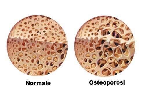 Come prevenire l'osteoporosi durante la menopausa