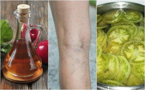 Aceto e pomodori verdi per combattere le varici