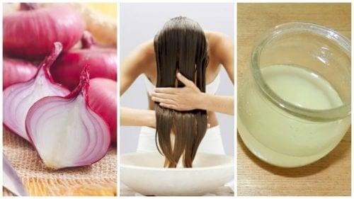 Rimedi a base di cipolla contro la caduta dei capelli