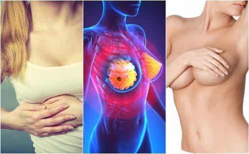 Forme iniziali del tumore al seno: quali sintomi?