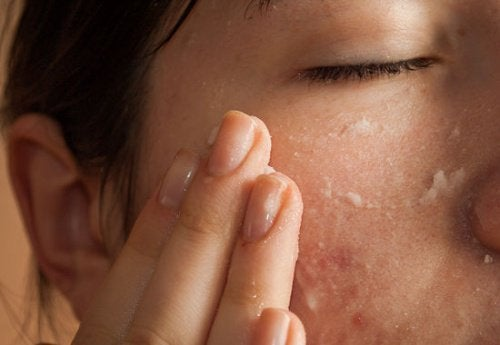 sorprendenti usi dell'aspirina per l'acne