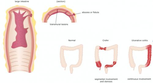 Trattamento del morbo di Crohn