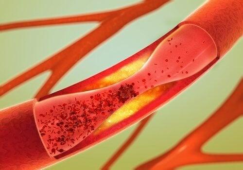 Alimenti per le arterie: i 12 migliori
