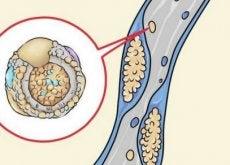 colesterolo pareti arteriose pulire le arterie