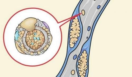 5 alimenti che aiutano a pulire le arterie