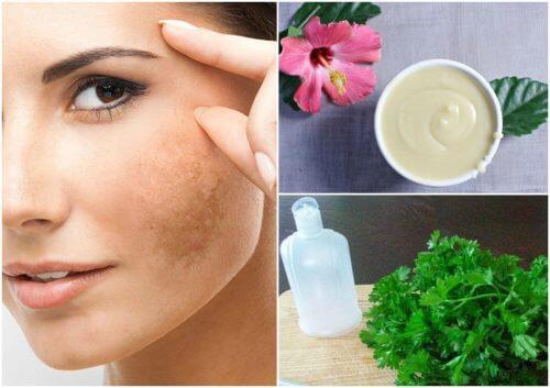 Melasma al viso come ridurlo grazie a 5 rimedi naturali