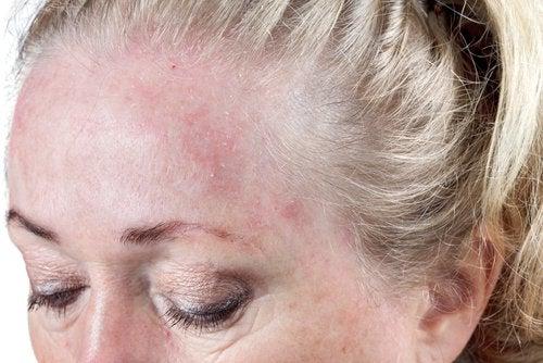 Donna con eritema sulla fronte