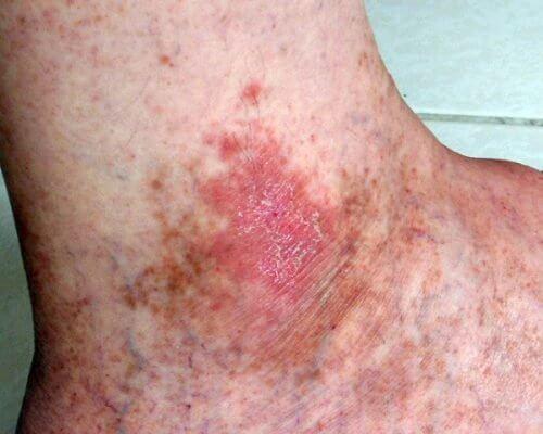 Piaghe tra i sintomi del tumore della pelle