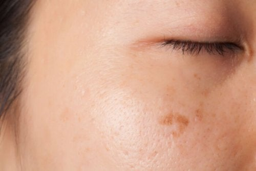 Macchia sulla pelle del viso