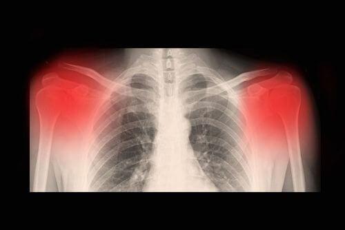 Che cos'è l'artrosi? Cause, sintomi e trattamento