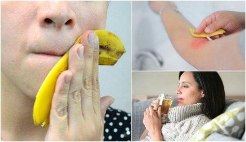 8 benefici della buccia di banana per tutti i giorni