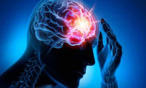 Le 4 malattie cerebrovascolari più comuni