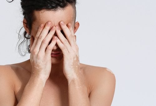donna con vitiligine si copre il viso