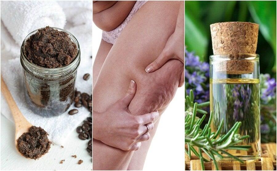 5 trattamenti naturali per ridurre la cellulite