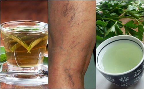 5 tisane diuretiche per combattere le vene varicose