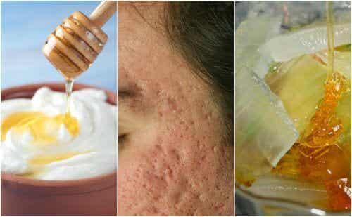 5 maschere naturali per attenuare i segni dell'acne