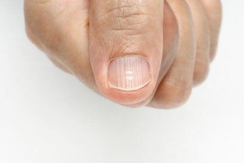 Righe sulle unghie: cause e rimedi