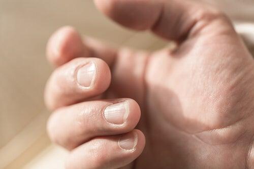 Righe sulle unghie per deficit di magnesio