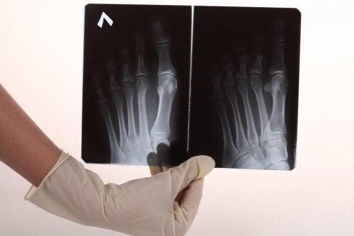 Radiografia delle ossa del piede