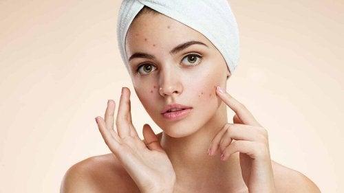 Segreti di bellezza con l'aceto di mele per l'acne