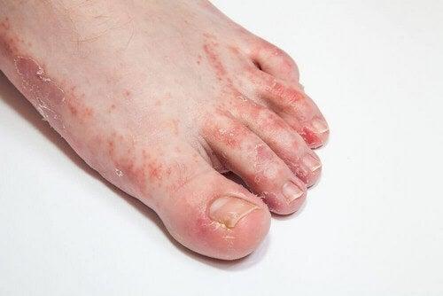 Infezione al piede