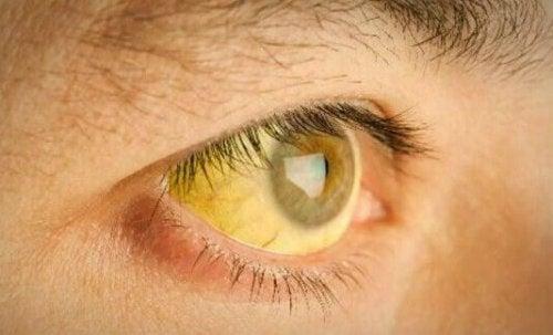 Occhio che denota itterizia