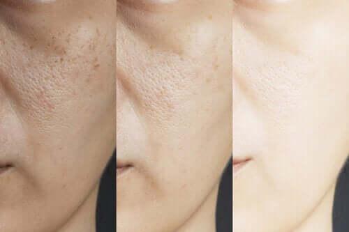 Restringere i pori dilatati con 8 rimedi naturali