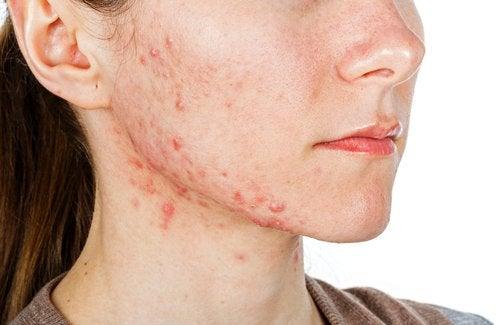 6 passaggi per eliminare l'acne