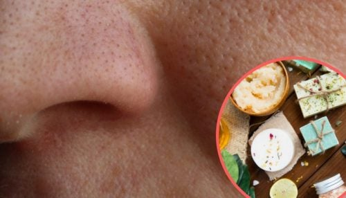 8 rimedi naturali per restringere i pori dilatati