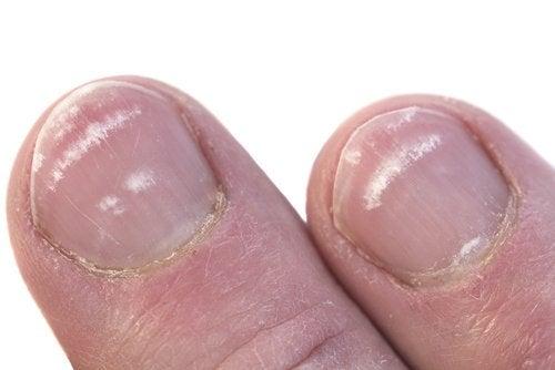 Macchie bianche su unghie delle mani