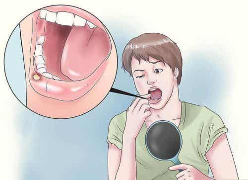 Ulcere della bocca: 8 rimedi naturali