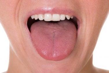 papilloma sulla lingua cause