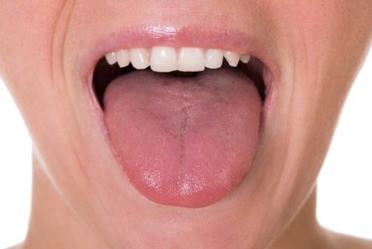 tumore alla gola papilloma virus)