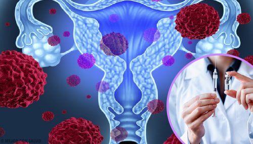 Papilloma virus umano: tutto quello che c'è da sapere