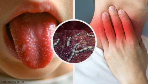 Scarlattina: cause, sintomi e diagnosi