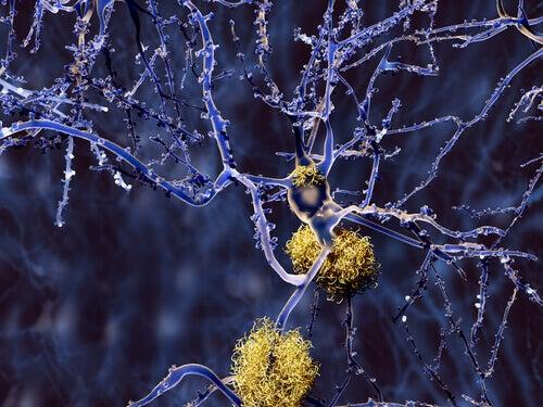 Tipi di demenza diversi dall'Alzheimer