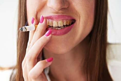Tumore alla lingua: donna fumatrice.