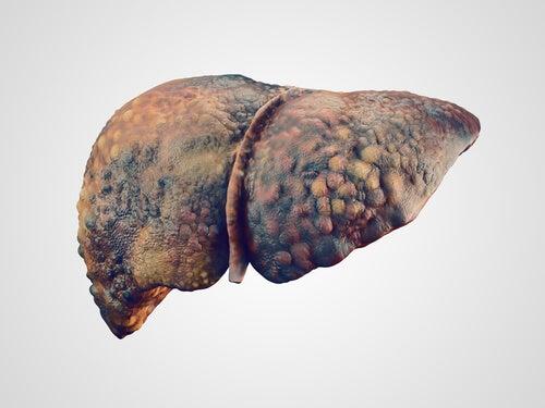 Fegato necrotico a causa del paracetamolo