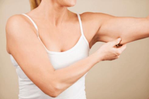 Donna che mostra una parte non tonica delle braccia