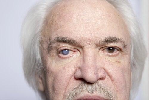 Paziente anziano con glaucoma