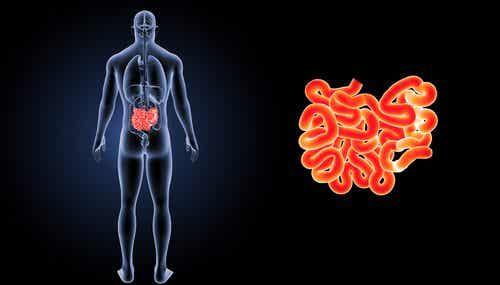 Cos'è e come si cura un'ernia inguinale?