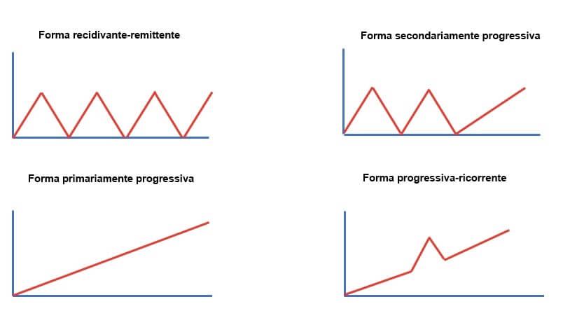 Modelli evolutivi della sclerosi multipla