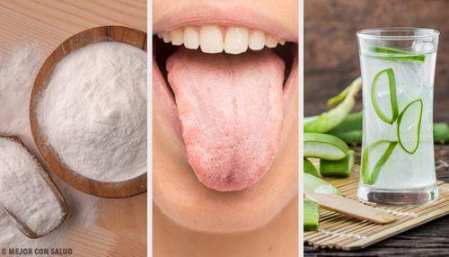 Addio alla lingua bianca con 7 rimedi naturali