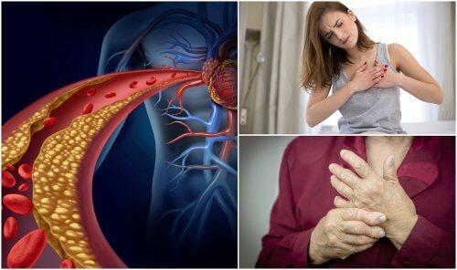 Colesterolo alto? 10 sintomi per riconoscerlo