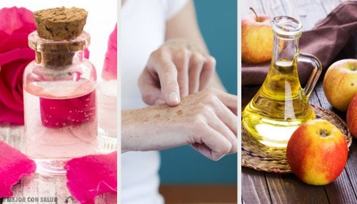 Schiarire le mani: 8 trattamenti naturali
