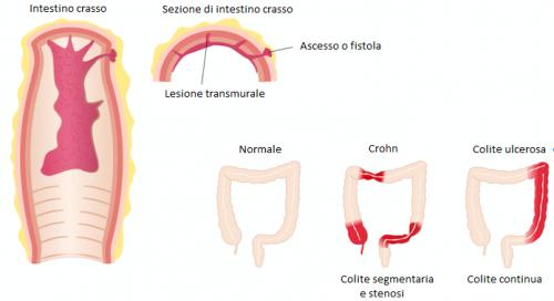 Morbi di Crohn