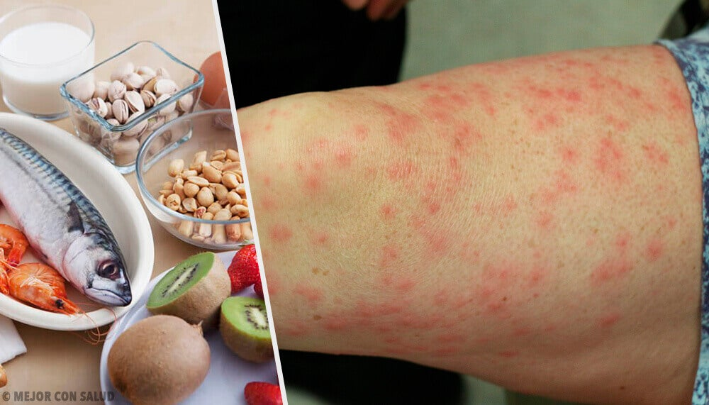 Alimenti allergizzanti più comuni e come sostituirli